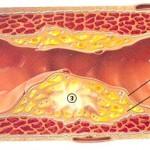cholesterol aderverkalking