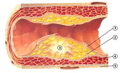 te laag ldl cholesterol